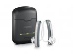 Alat Bantu Dengar Digital, Solusi Terbaik untuk Gangguan Pendengaran